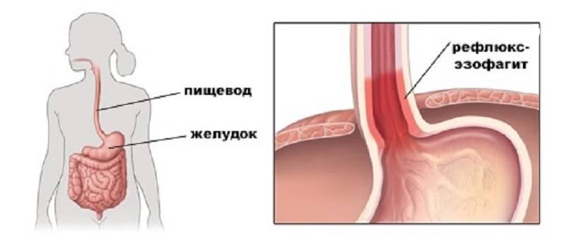 рефлюкс-эзофагит причины