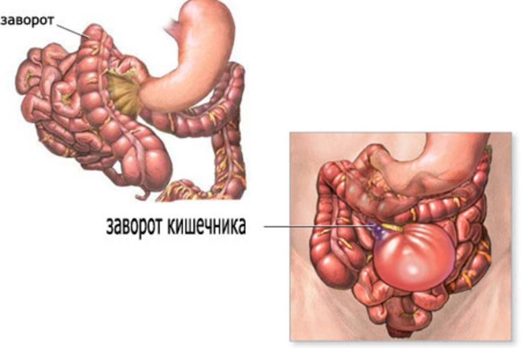 заворот кишечника