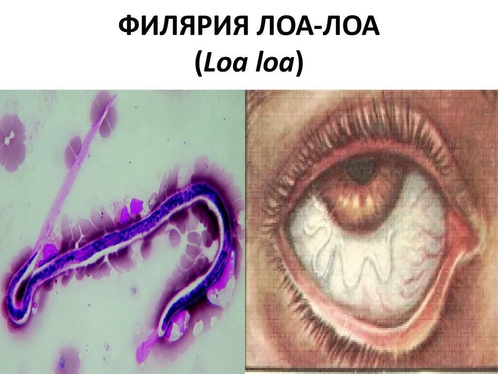 Филяриатоз переносчики