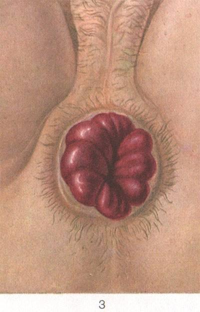 Геморрой после коронавируса