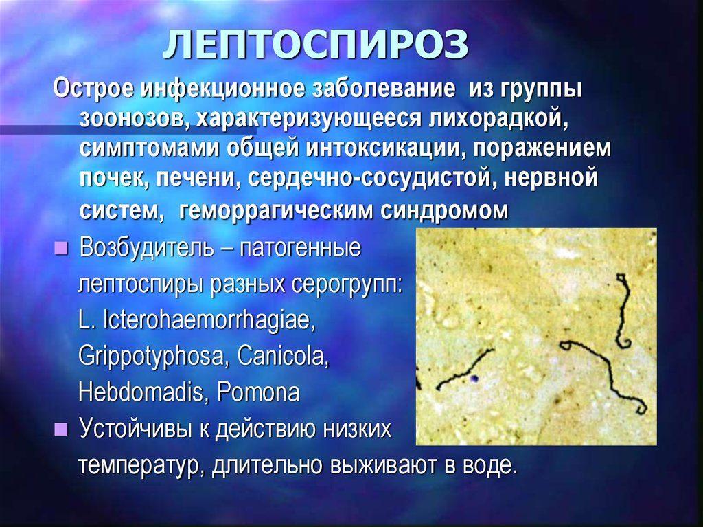 Лептоспироз
