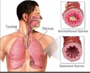 бронхит при коронавирусе бывает или нет