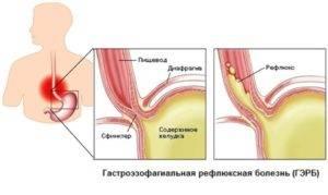 ГЭРБ частая причина кислого вкуса во рту
