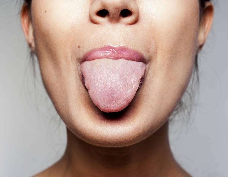 Почему язык сухой