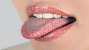 Бело серый налет на языке