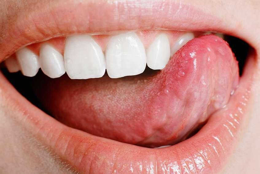 пигментации полости рта