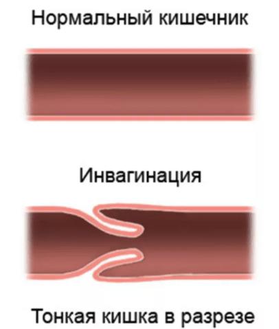 Инвагинация кишечника