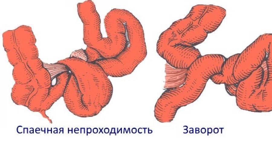 Заворот толстой кишки лечение