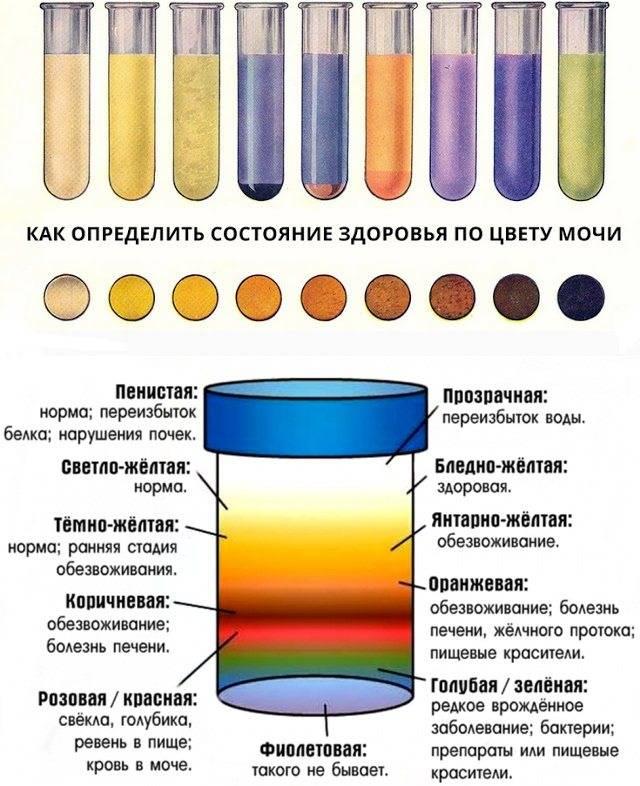 Причины изменения цвета мочи