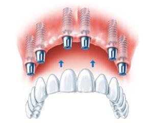 Процедура имплантации зубов All on 6