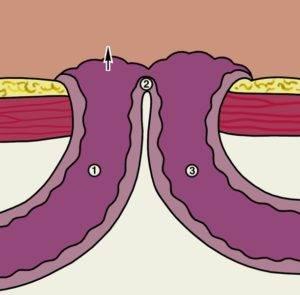 Толстокишечный свищ симптомы