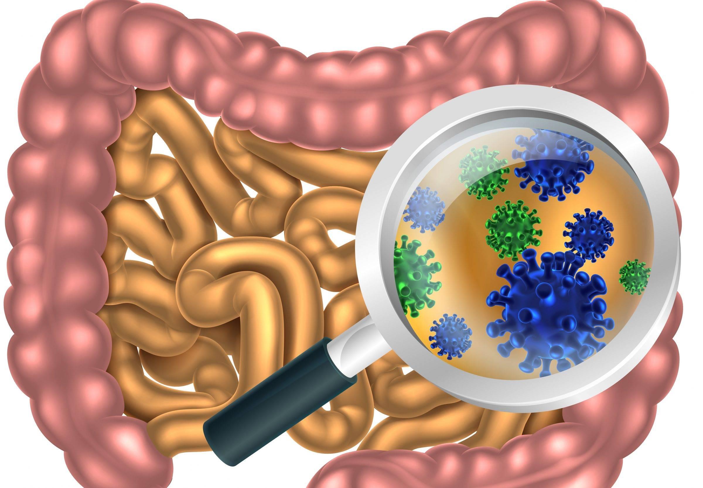 Бактериальная диарея причины