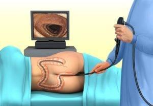 Подготовка к процедуре аноскопии