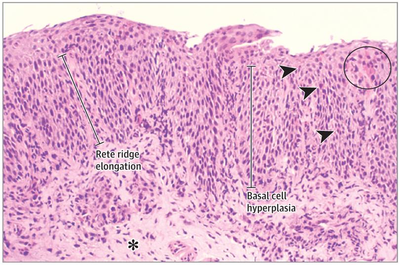 Эозинофильный эзофагит