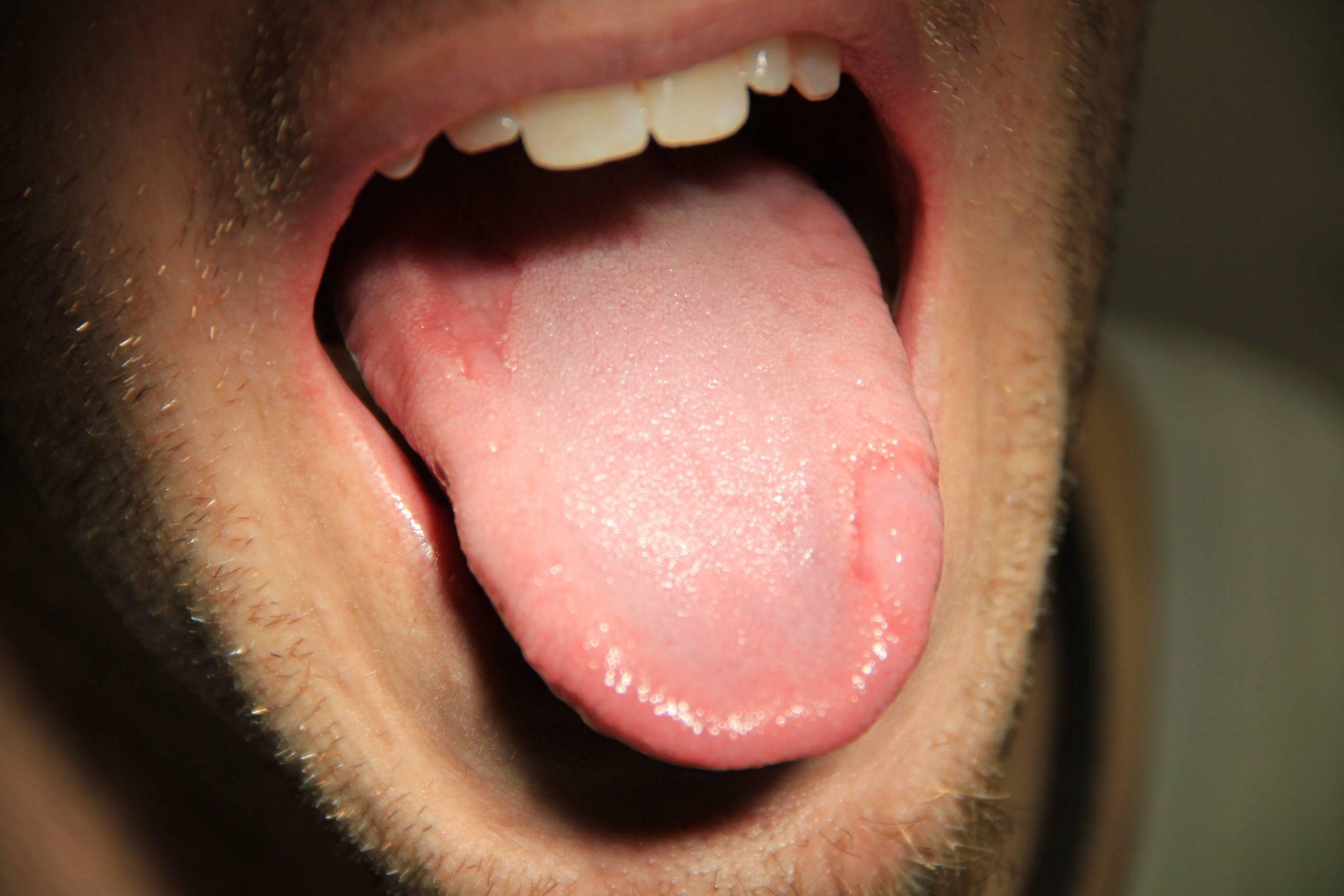 Микоз языка