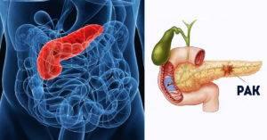 наличием раковой опухоли поджелудочной железы