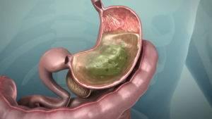Влияние желудочного сока на гастрит желудка