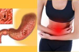 Разрыв язвы желудка симптомы