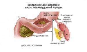 Диагностика кисты поджелудочной железы
