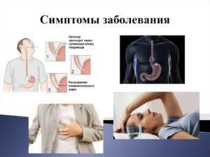 Виды раздражения пищевода