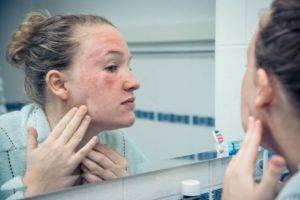 Отравление диагностируют по покраснению кожи лица,шеи и рук