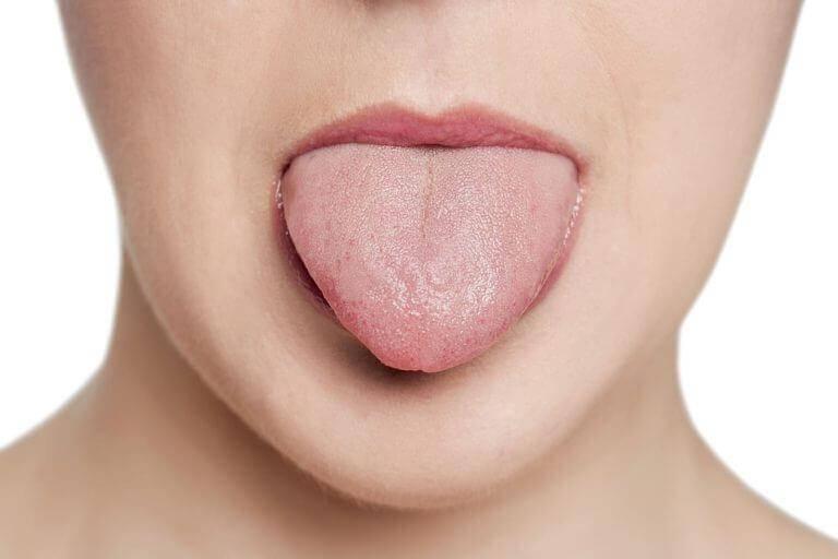 Жжение языка