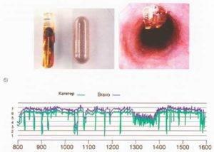 Диагностика кислотного рефлюкса с помощью капсулы Bravo