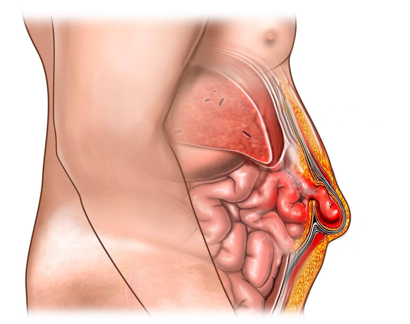 Шишка в желудке или брюшной полости